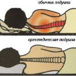 сравнение обычной подушки с ортопедической